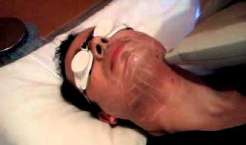 Epilation au laser de la barbe