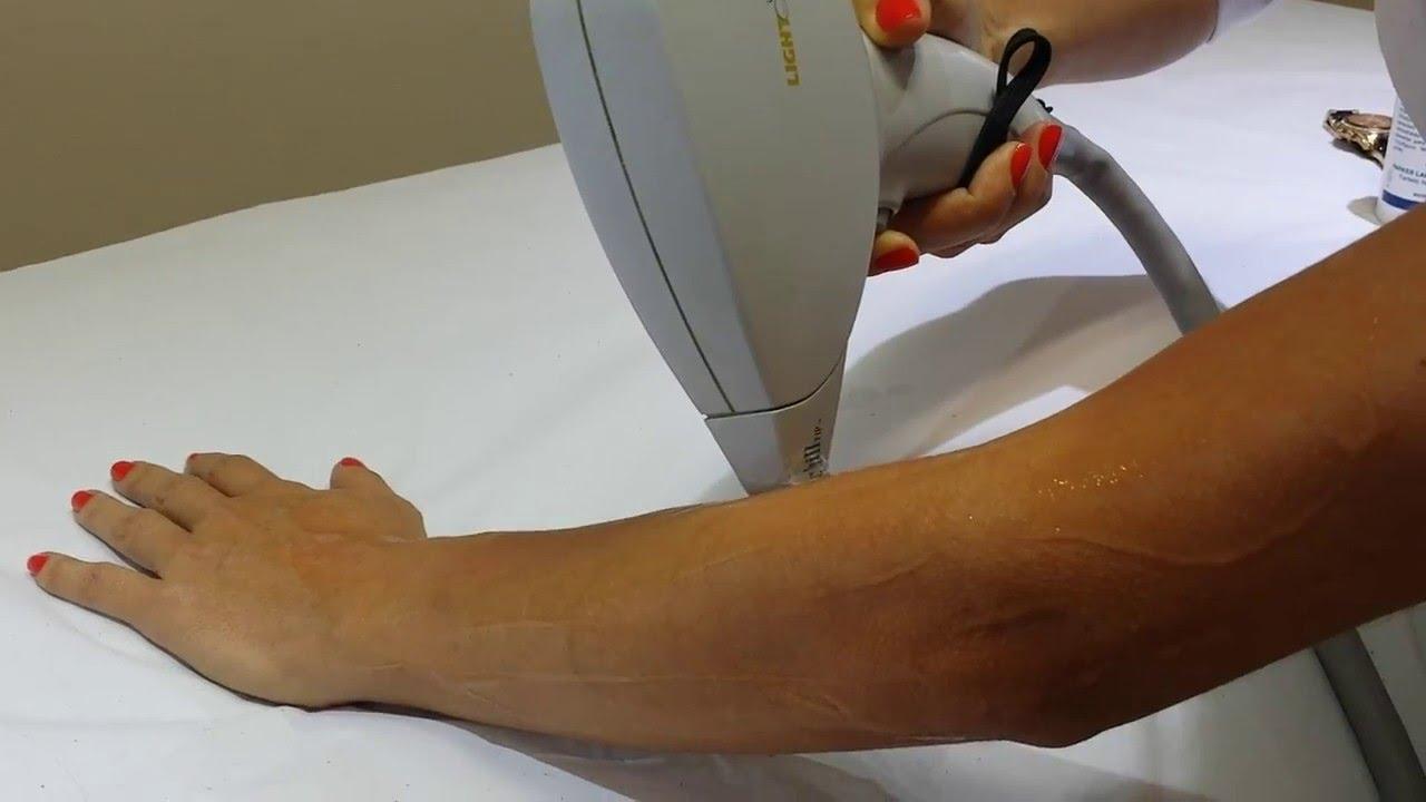 L'épilation des bras au laser