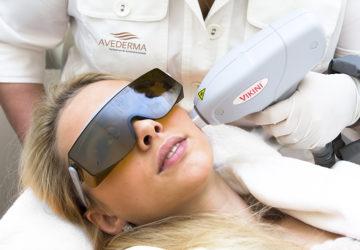 Séance d'épilation du visage au laser