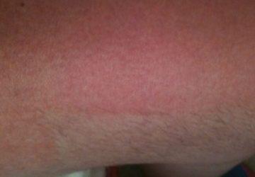 Peau rouge sensible après l'épilation